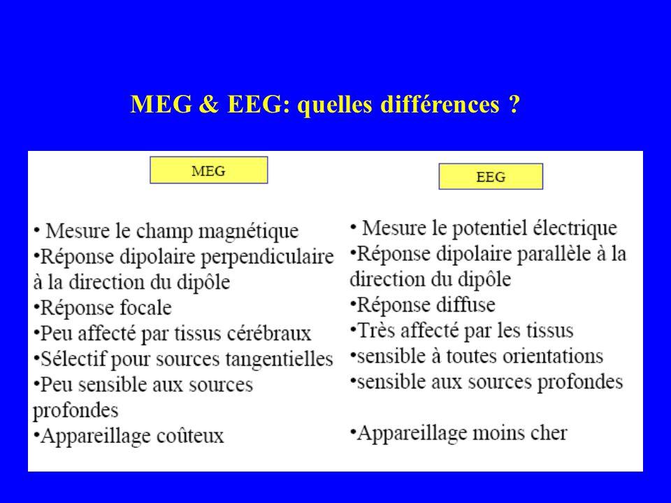 MEG & EEG: quelles différences ?