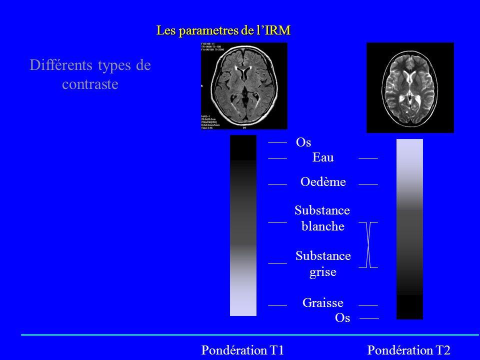 Os Eau Substance blanche Substance grise Graisse Oedème Pondération T1Pondération T2 Os Différents types de contraste Les parametres de lIRM