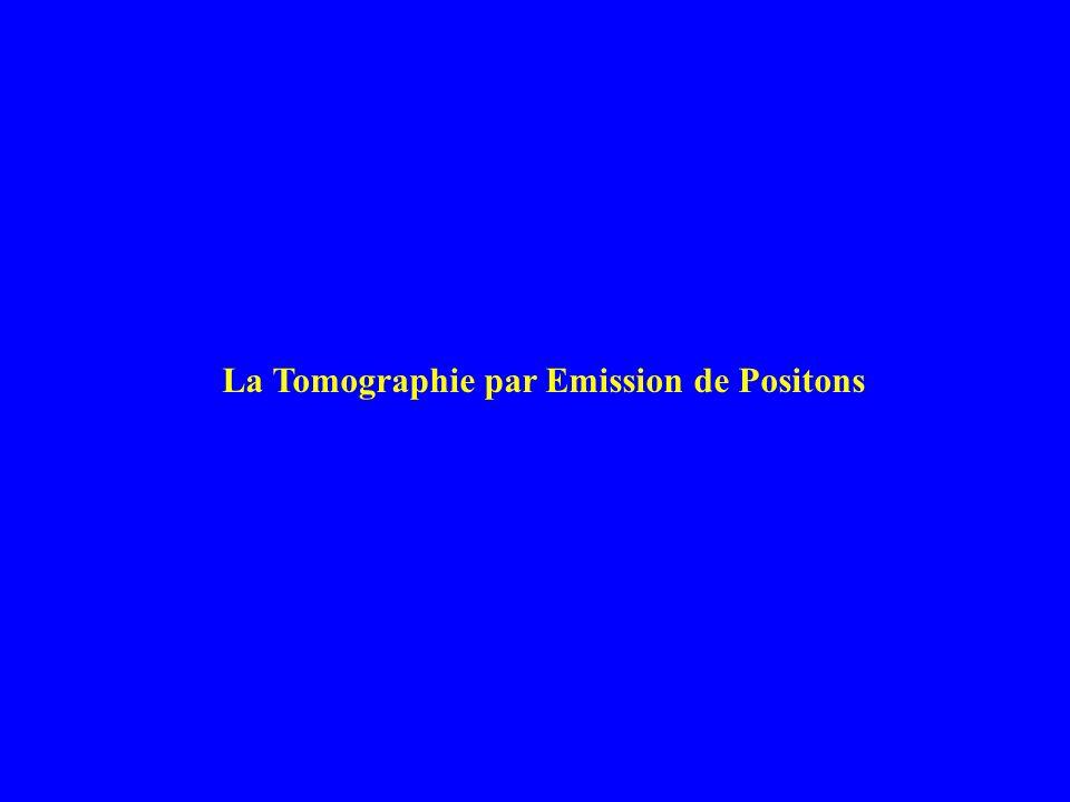 La Tomographie par Emission de Positons