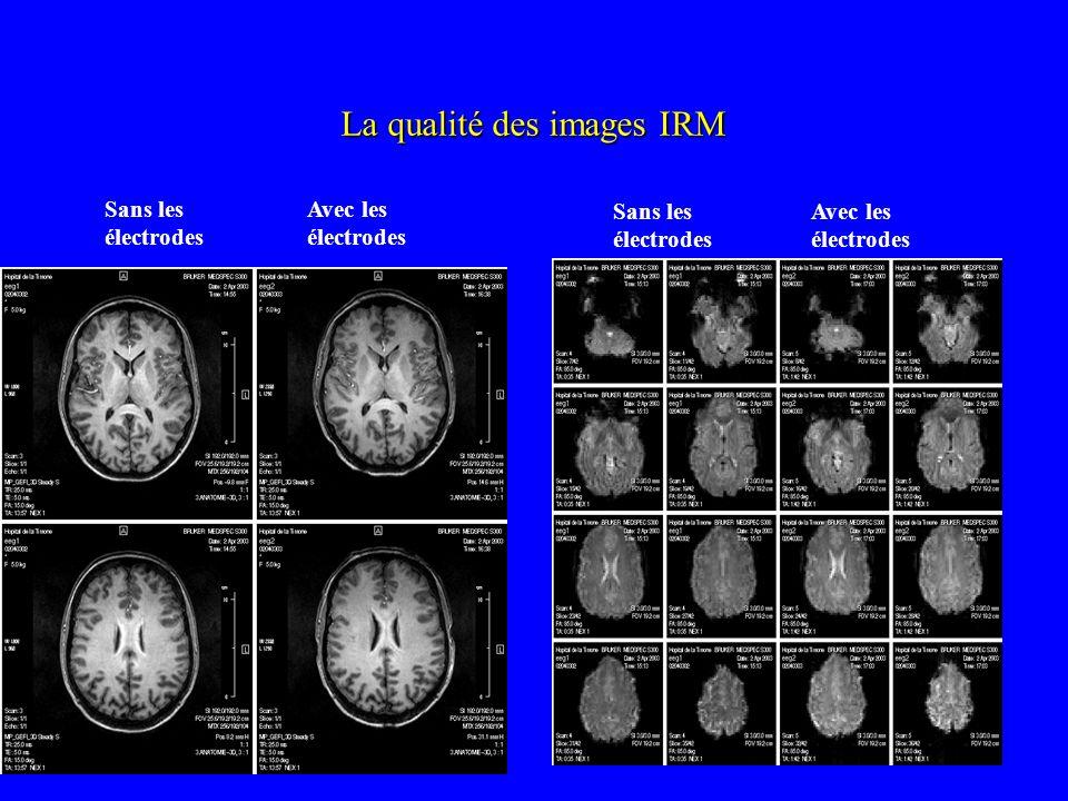 Sans les électrodes Avec les électrodes La qualité des images IRM