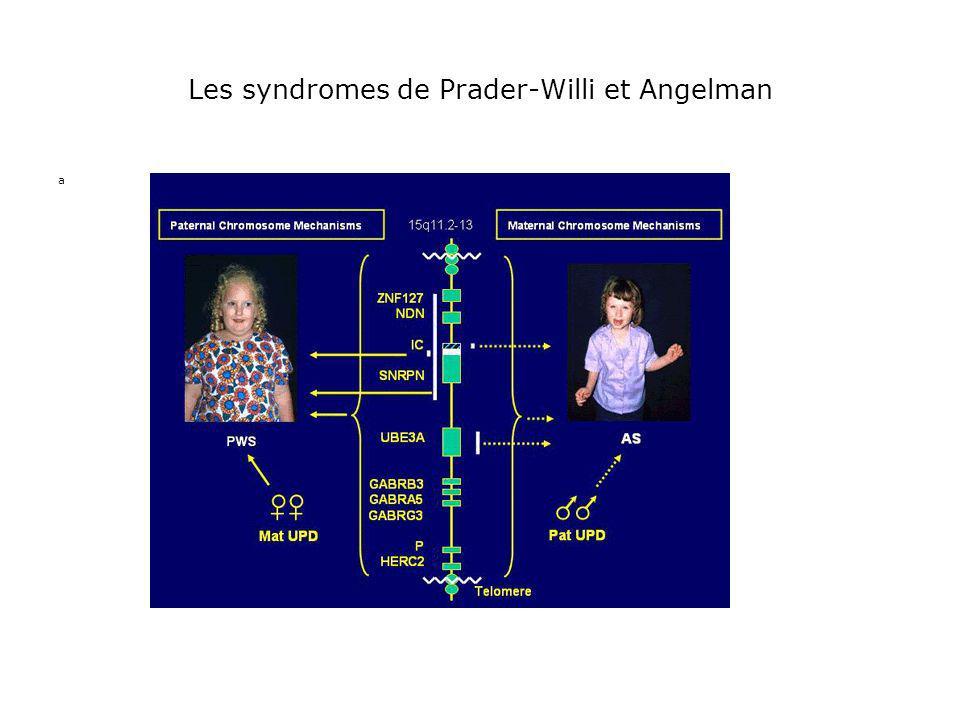 Les syndromes de Prader-Willi et Angelman a