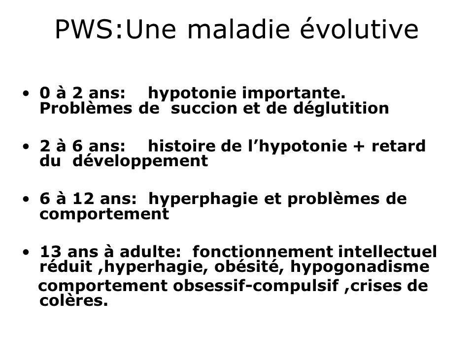 PWS:Une maladie évolutive 0 à 2 ans: hypotonie importante. Problèmes de succion et de déglutition 2 à 6 ans: histoire de lhypotonie + retard du dévelo