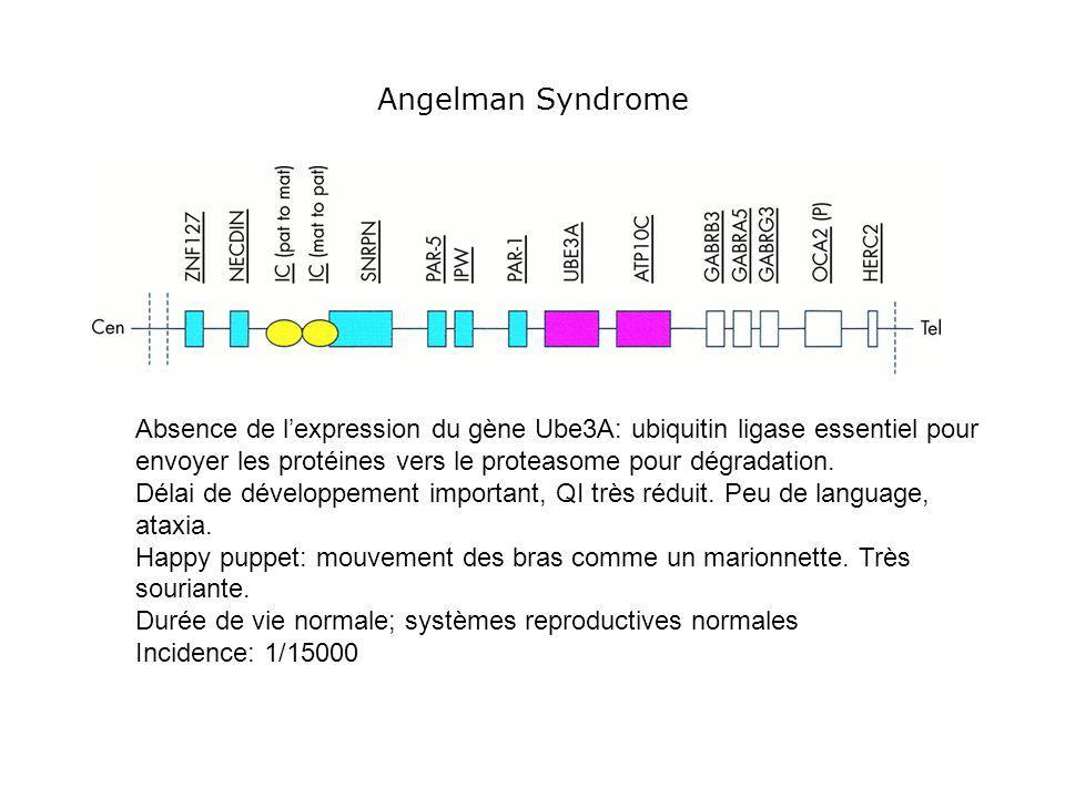 Angelman Syndrome Absence de lexpression du gène Ube3A: ubiquitin ligase essentiel pour envoyer les protéines vers le proteasome pour dégradation. Dél