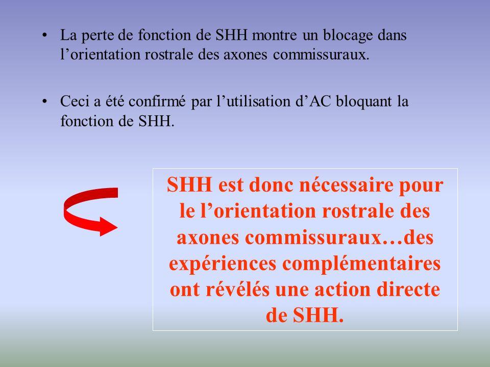 La perte de fonction de SHH montre un blocage dans lorientation rostrale des axones commissuraux. Ceci a été confirmé par lutilisation dAC bloquant la