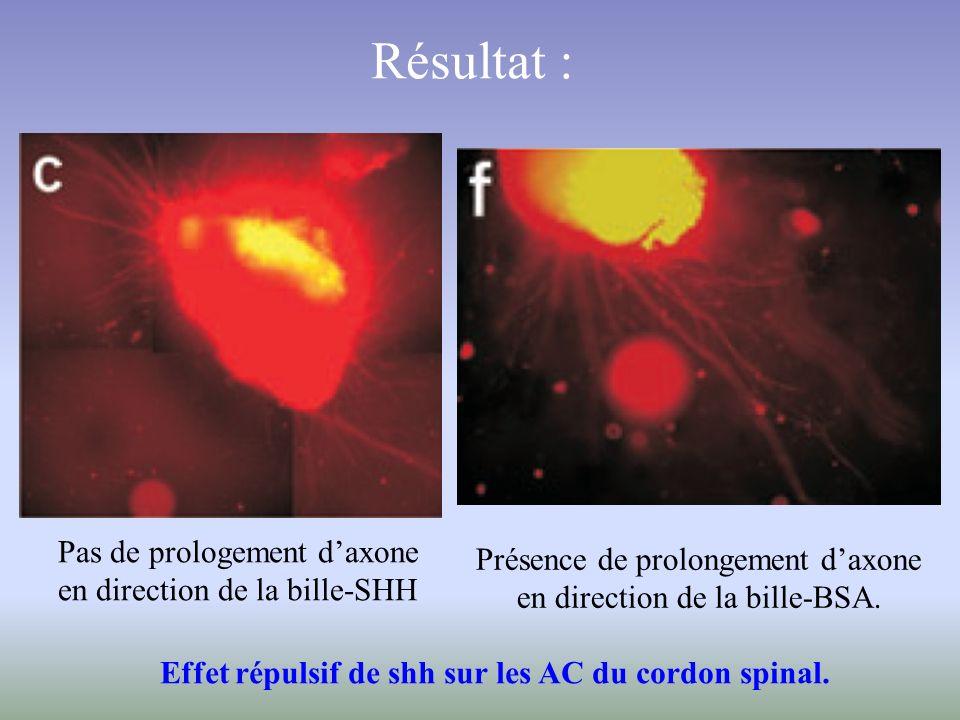 Résultat : Pas de prologement daxone en direction de la bille-SHH Présence de prolongement daxone en direction de la bille-BSA. Effet répulsif de shh