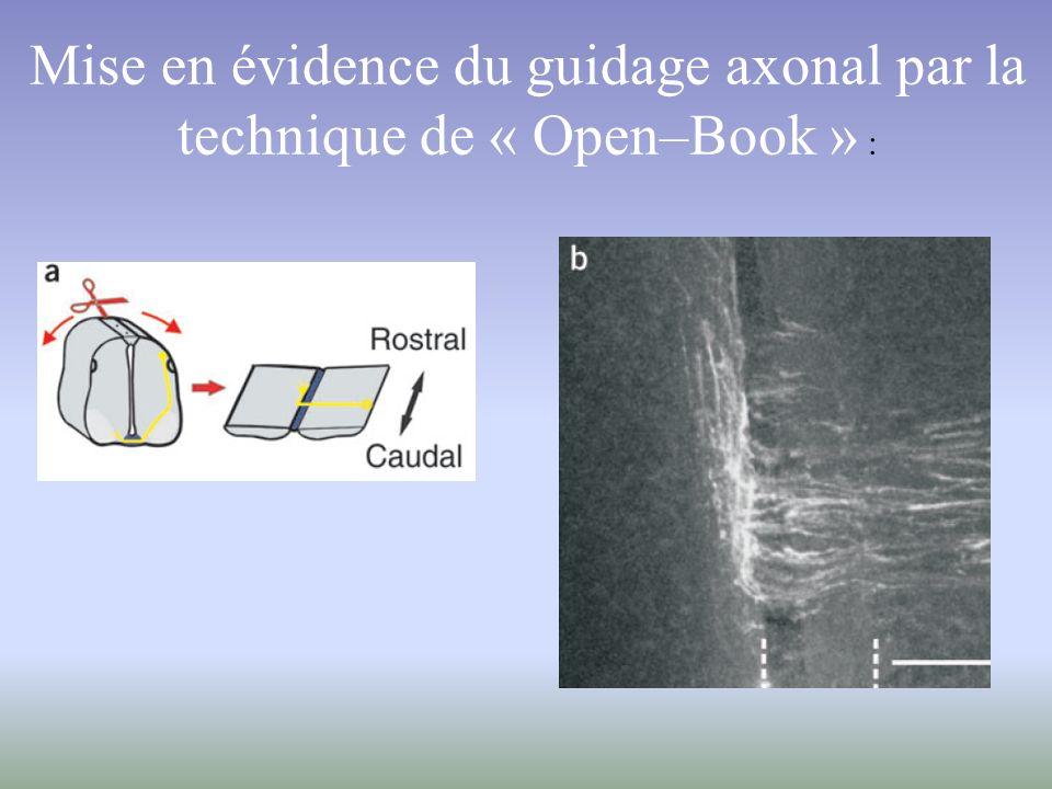 BUT : Mettre en évidence des molécules intervenant dans le guidage des axones commissuraux