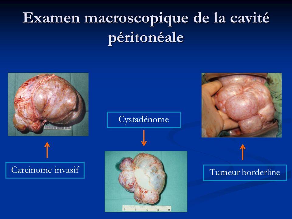 Examen macroscopique de la cavité péritonéale Carcinome invasif Cystadénome Tumeur borderline
