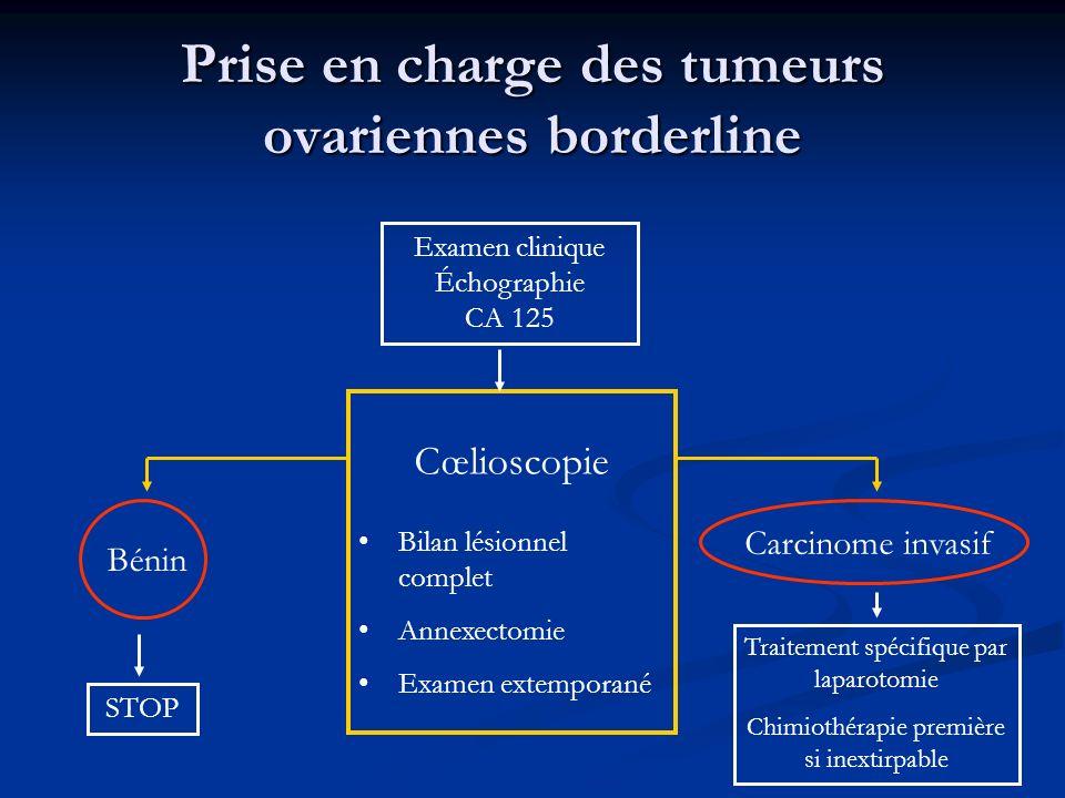 Prise en charge des tumeurs ovariennes borderline Examen clinique Échographie CA 125 Cœlioscopie Bilan lésionnel complet Annexectomie Examen extempora