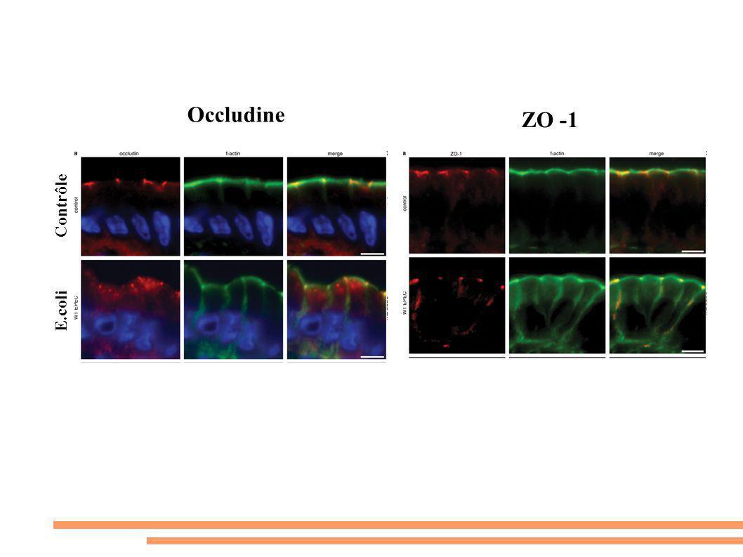 ZO -1 Occludine Contrôle E.coli
