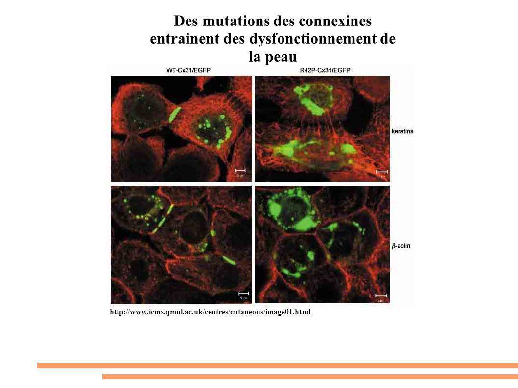 http://www.icms.qmul.ac.uk/centres/cutaneous/image01.html Des mutations des connexines entrainent des dysfonctionnement de la peau