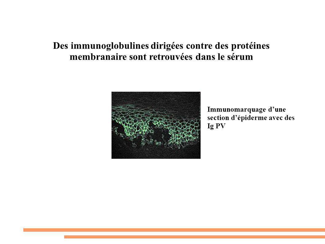 Des immunoglobulines dirigées contre des protéines membranaire sont retrouvées dans le sérum Immunomarquage dune section dépiderme avec des Ig PV