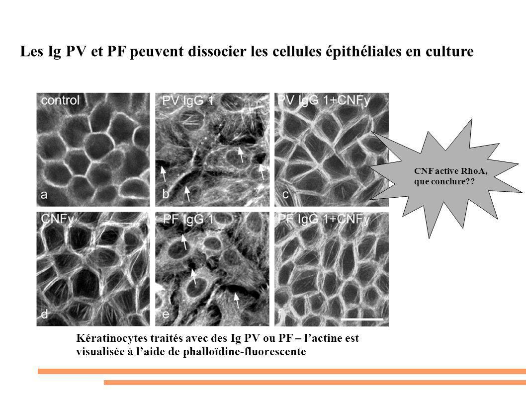 Les Ig PV et PF peuvent dissocier les cellules épithéliales en culture Kératinocytes traités avec des Ig PV ou PF – lactine est visualisée à laide de