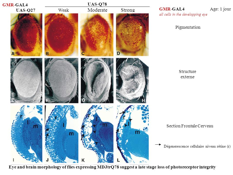 UAS-Q78 Weak ModerateStrong UAS-Q27 GMR-GAL4 Pigmentation Structure externe Age: 1 jour Section Frontale Cerveau Dégenerescence cellulaire niveau réti