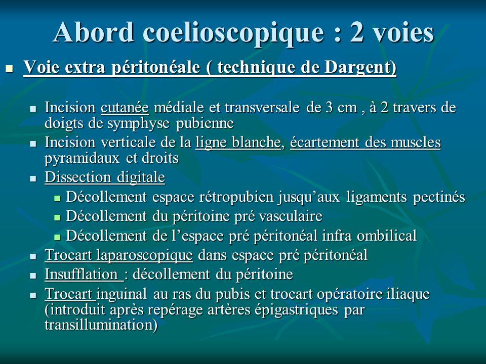 Abord coelioscopique : 2 voies Voie extra péritonéale ( technique de Dargent) Voie extra péritonéale ( technique de Dargent) Incision cutanée médiale