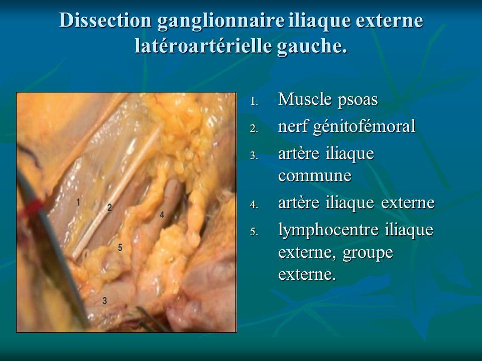 Dissection ganglionnaire iliaque externe latéroartérielle gauche. 1. Muscle psoas 2. nerf génitofémoral 3. artère iliaque commune 4. artère iliaque ex