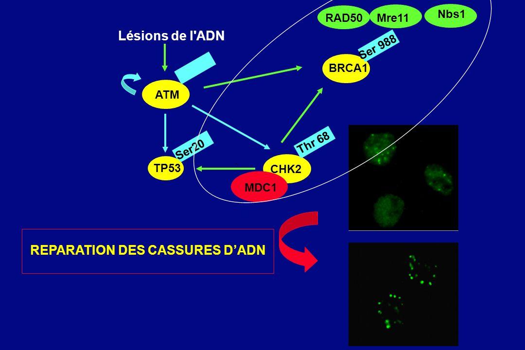 Lésions de l'ADN ATM TP53 CHK2 Ser20 BRCA1 Ser 988 MDC1 Thr 68 RAD50Mre11 Nbs1 REPARATION DES CASSURES DADN