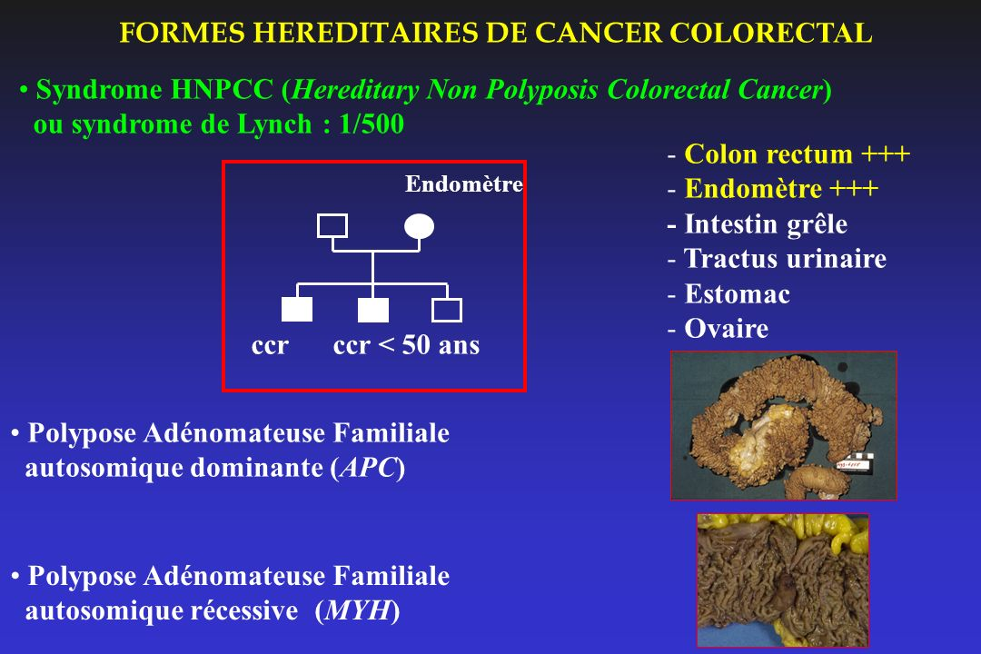 FORMES HEREDITAIRES DE CANCER COLORECTAL Polypose Adénomateuse Familiale autosomique dominante (APC) Syndrome HNPCC (Hereditary Non Polyposis Colorect