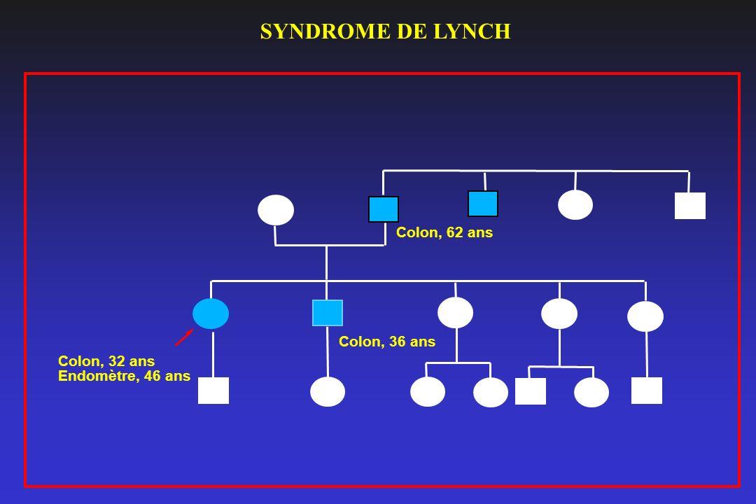 Colon, 32 ans Endomètre, 46 ans Colon, 62 ans Colon, 36 ans SYNDROME DE LYNCH