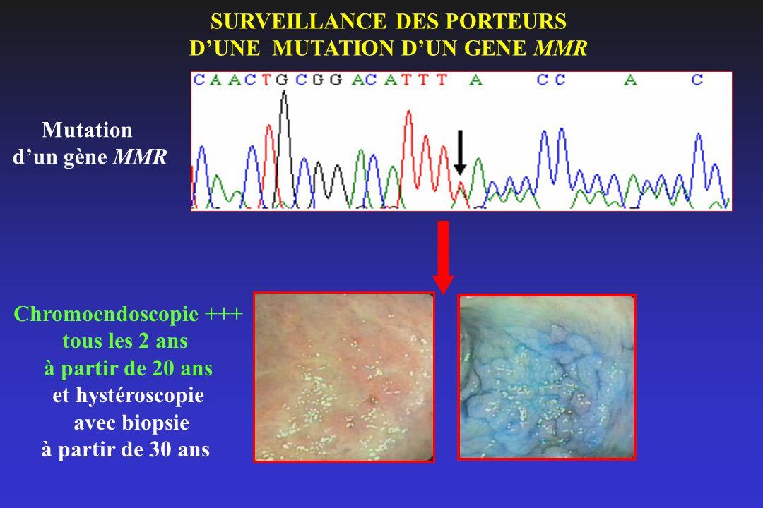 Mutation dun gène MMR SURVEILLANCE DES PORTEURS DUNE MUTATION DUN GENE MMR Chromoendoscopie +++ tous les 2 ans à partir de 20 ans et hystéroscopie ave