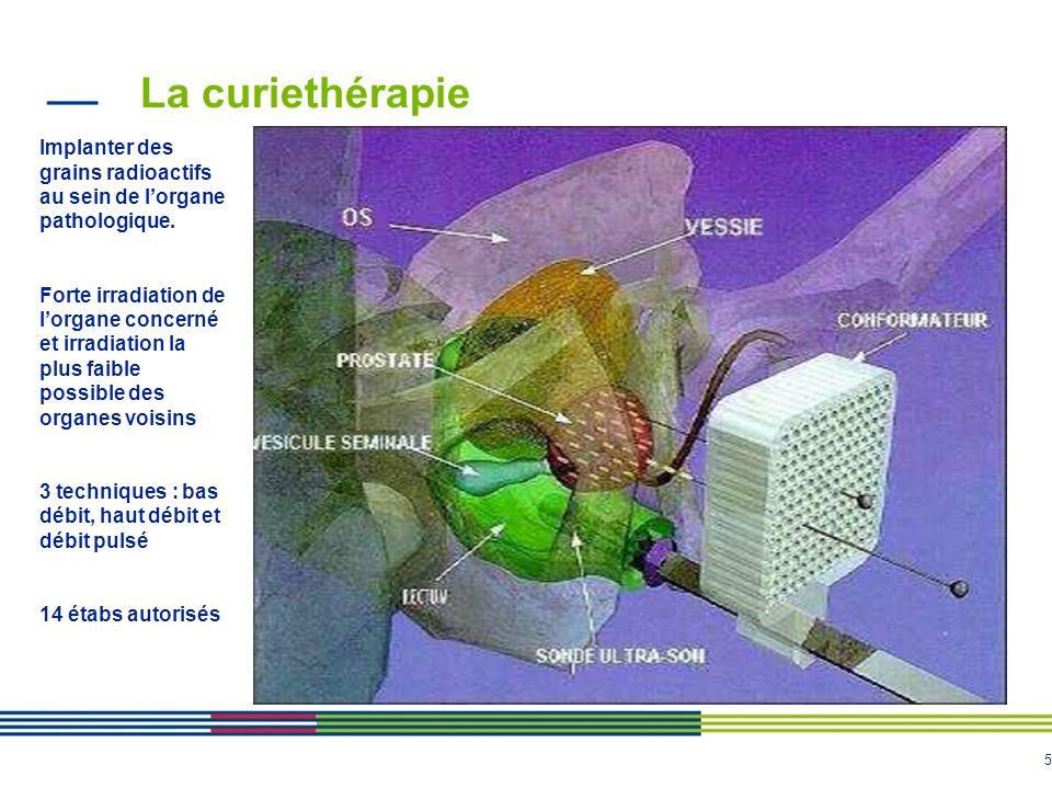 5 La curiethérapie Implanter des grains radioactifs au sein de lorgane pathologique. Forte irradiation de lorgane concerné et irradiation la plus faib