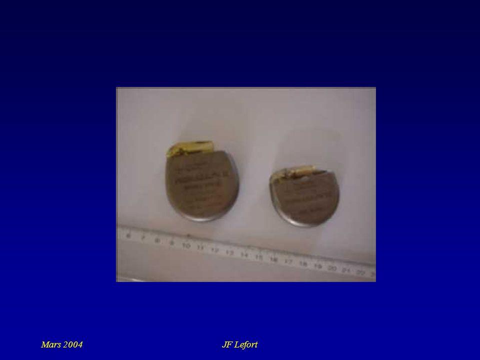 Mars 2004JF Lefort