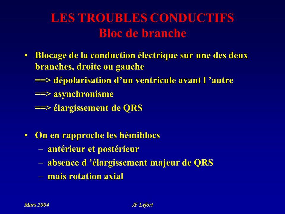 Mars 2004JF Lefort LES TROUBLES CONDUCTIFS Bloc de branche Blocage de la conduction électrique sur une des deux branches, droite ou gauche ==> dépolar
