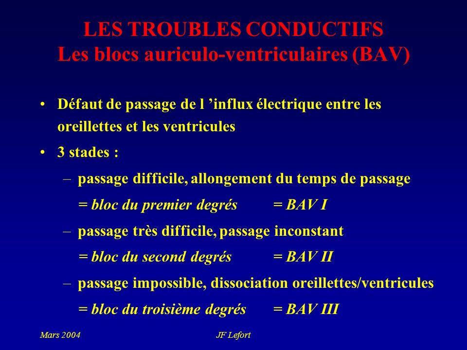 Mars 2004JF Lefort LES TROUBLES CONDUCTIFS Les blocs auriculo-ventriculaires (BAV) Défaut de passage de l influx électrique entre les oreillettes et l