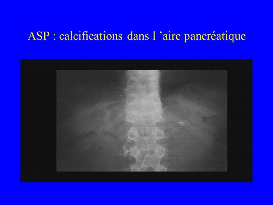 ASP : calcifications dans l aire pancréatique