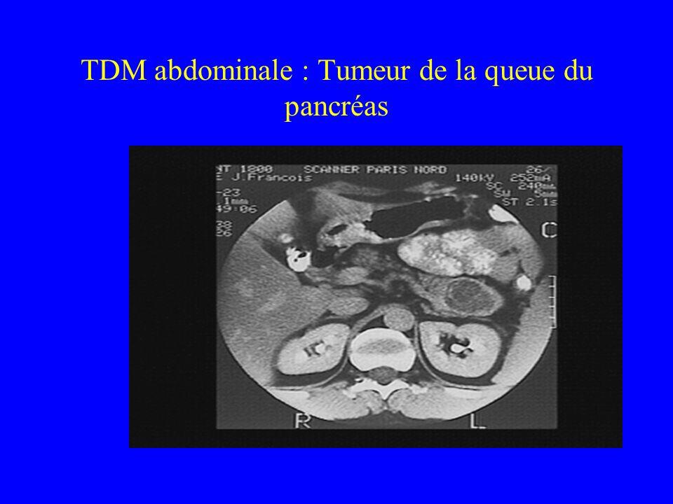 TDM abdominale : Tumeur de la queue du pancréas