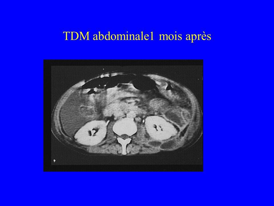TDM abdominale1 mois après