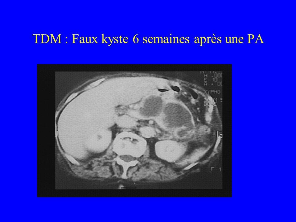 TDM : Faux kyste 6 semaines après une PA