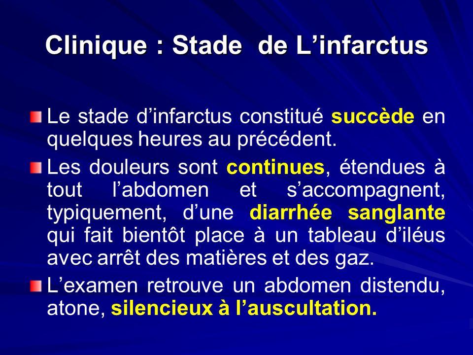 Clinique : Stade de Linfarctus Le stade dinfarctus constitué succède en quelques heures au précédent. Les douleurs sont continues, étendues à tout lab