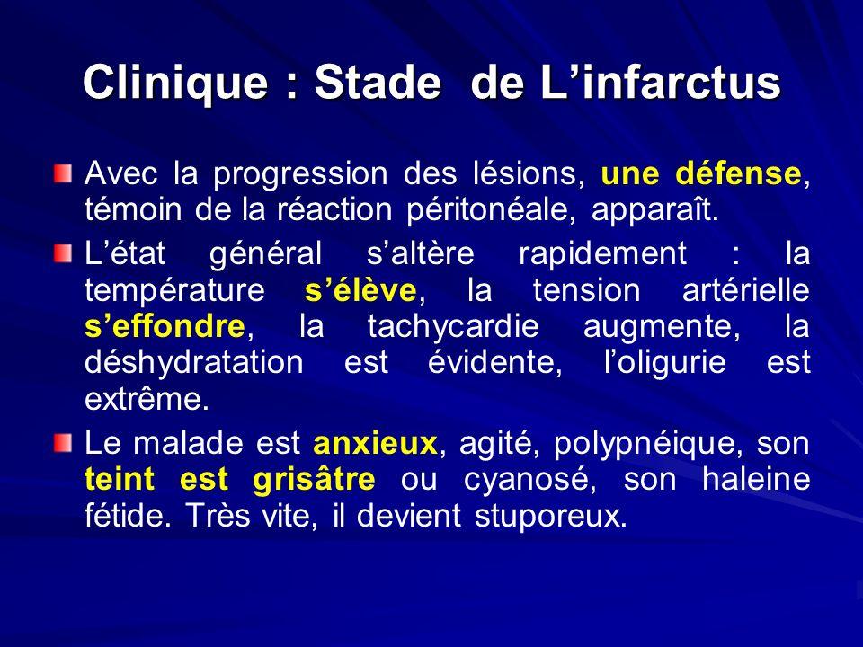 Clinique : Stade de Linfarctus Avec la progression des lésions, une défense, témoin de la réaction péritonéale, apparaît. Létat général saltère rapide