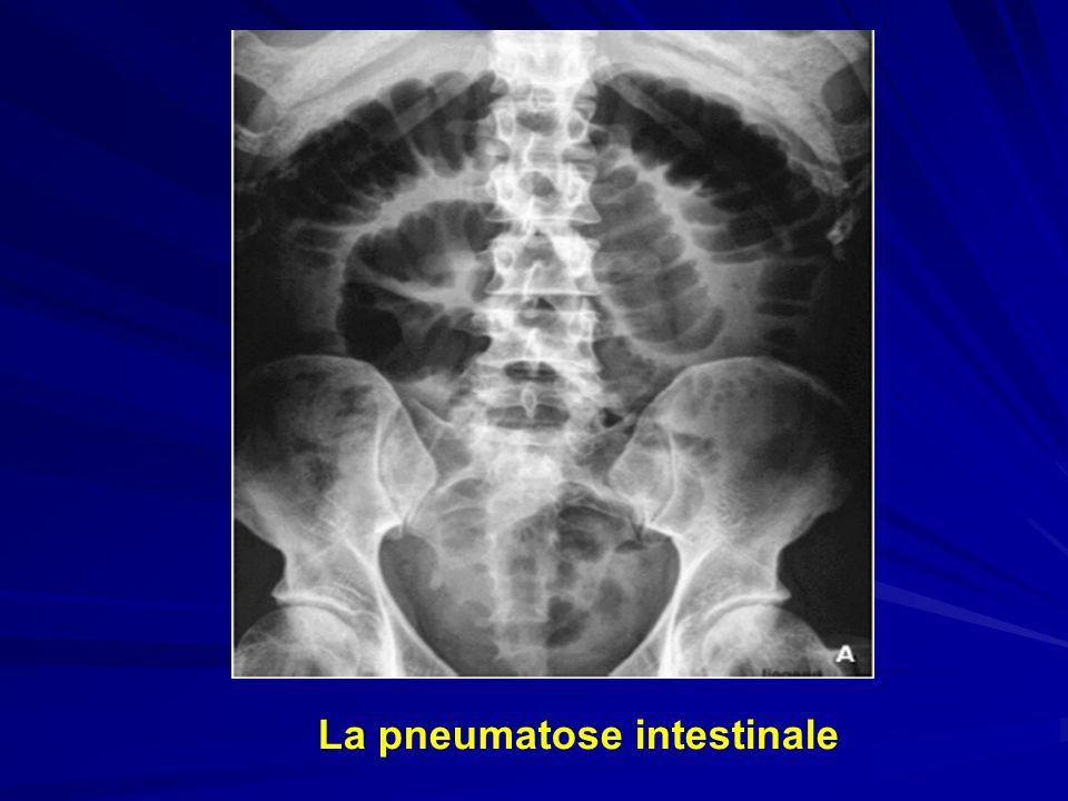 ASP La pneumatose intestinale