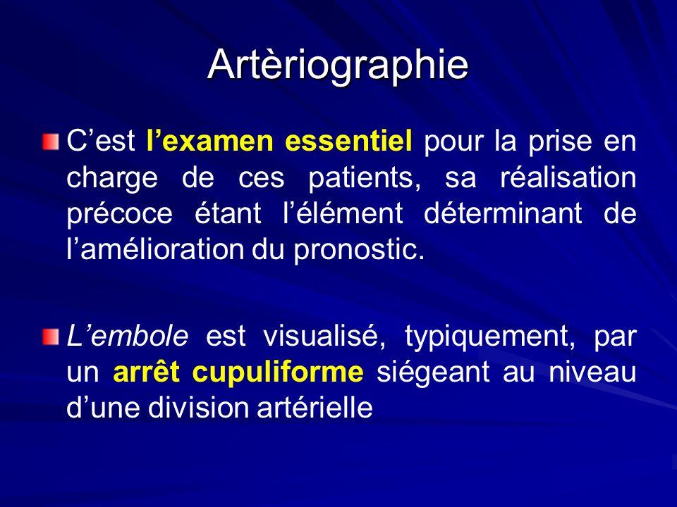 Artèriographie Cest lexamen essentiel pour la prise en charge de ces patients, sa réalisation précoce étant lélément déterminant de lamélioration du p