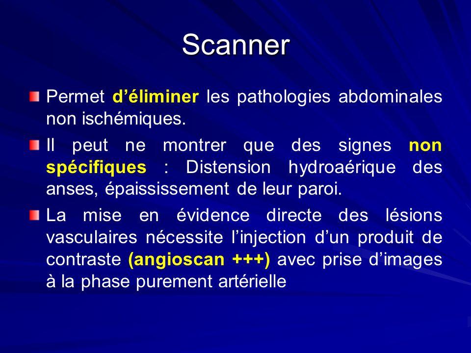 Scanner Permet déliminer les pathologies abdominales non ischémiques. Il peut ne montrer que des signes non spécifiques : Distension hydroaérique des