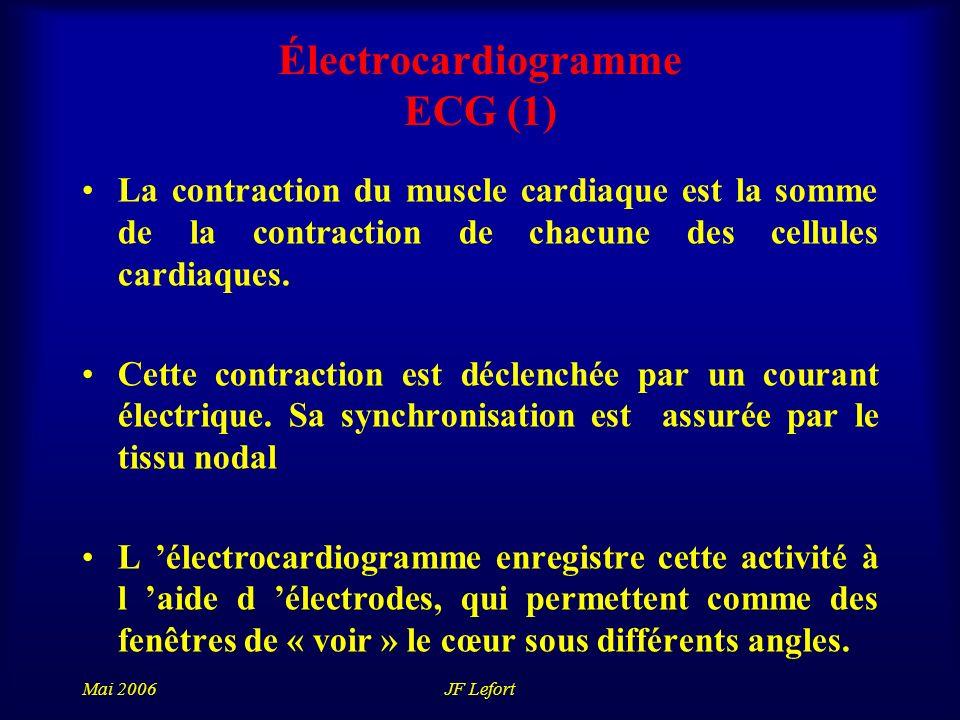 Mai 2006JF Lefort Électrocardiogramme ECG (1) La contraction du muscle cardiaque est la somme de la contraction de chacune des cellules cardiaques.