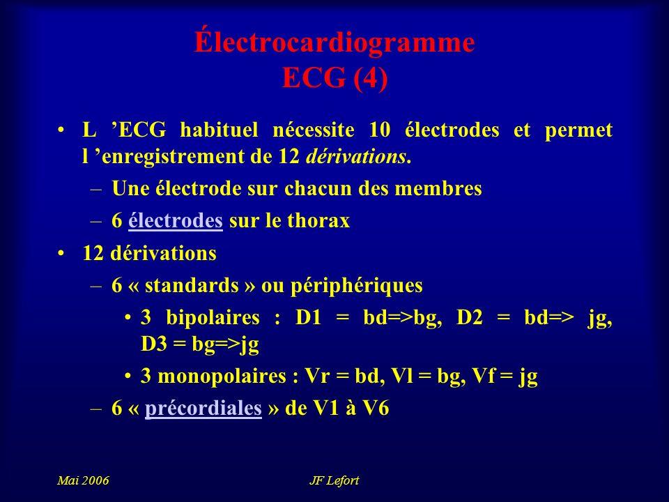 Mai 2006JF Lefort Électrocardiogramme ECG (4) L ECG habituel nécessite 10 électrodes et permet l enregistrement de 12 dérivations.