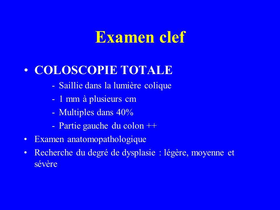Examen clef COLOSCOPIE TOTALE -Saillie dans la lumière colique -1 mm à plusieurs cm -Multiples dans 40% -Partie gauche du colon ++ Examen anatomopatho