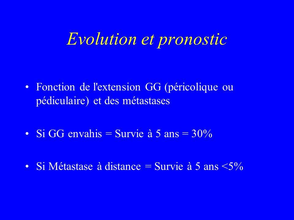 Evolution et pronostic Fonction de l'extension GG (péricolique ou pédiculaire) et des métastases Si GG envahis = Survie à 5 ans = 30% Si Métastase à d