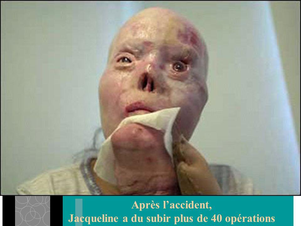 Après laccident, Jacqueline a du subir plus de 40 opérations