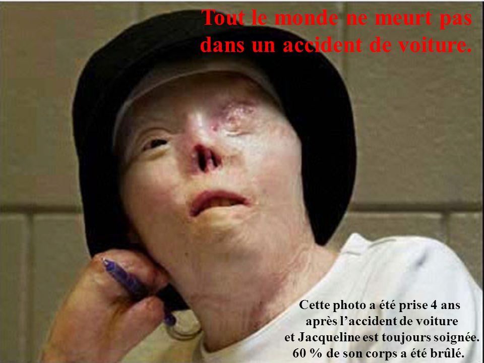 Tout le monde ne meurt pas dans un accident de voiture. Cette photo a été prise 4 ans après laccident de voiture et Jacqueline est toujours soignée. 6