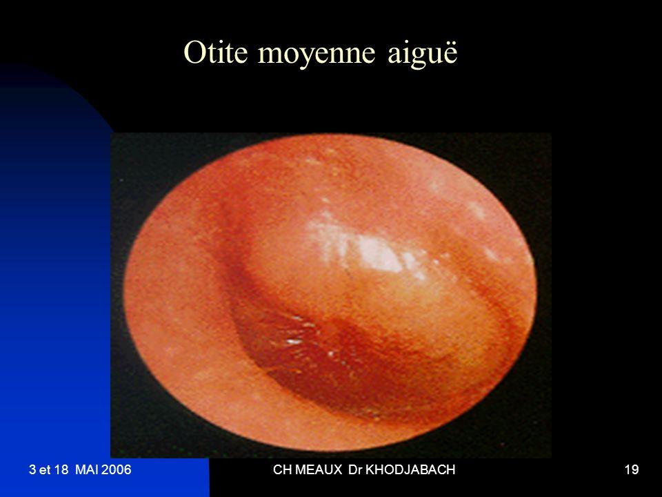 3 et 18 MAI 2006CH MEAUX Dr KHODJABACH19 Otite moyenne aiguë