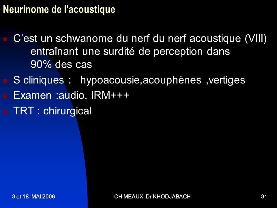 3 et 18 MAI 2006CH MEAUX Dr KHODJABACH31 Neurinome de lacoustique Cest un schwanome du nerf du nerf acoustique (VIII) entraînant une surdité de percep