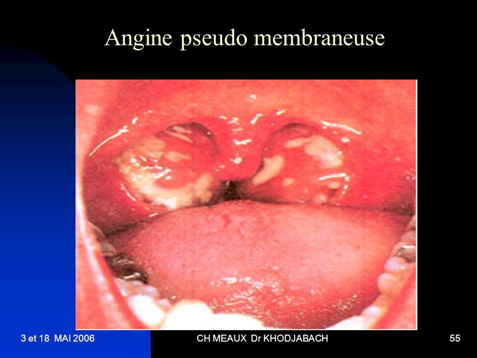 3 et 18 MAI 2006CH MEAUX Dr KHODJABACH55 Angine pseudo membraneuse