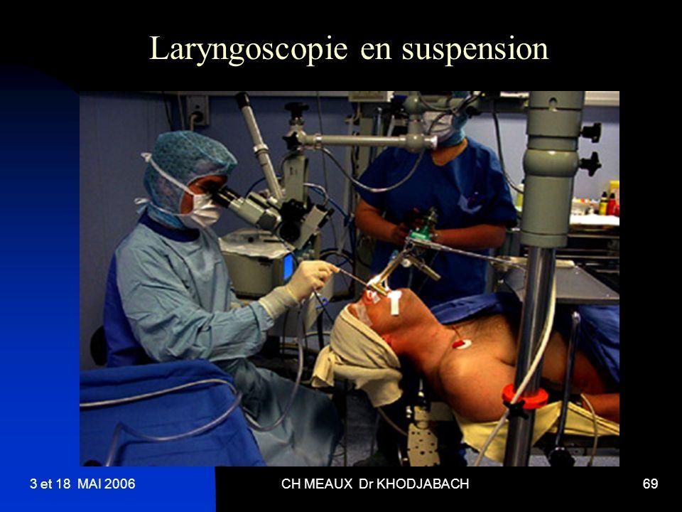 3 et 18 MAI 2006CH MEAUX Dr KHODJABACH69 Laryngoscopie en suspension