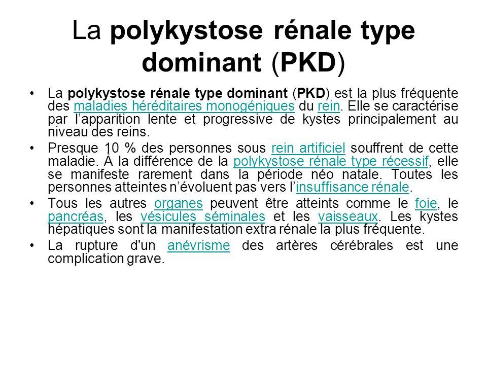 La polykystose rénale type dominant (PKD) La polykystose rénale type dominant (PKD) est la plus fréquente des maladies héréditaires monogéniques du re