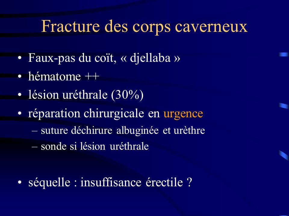 Fracture des corps caverneux Faux-pas du coït, « djellaba » hématome ++ lésion uréthrale (30%) réparation chirurgicale en urgence –suture déchirure al