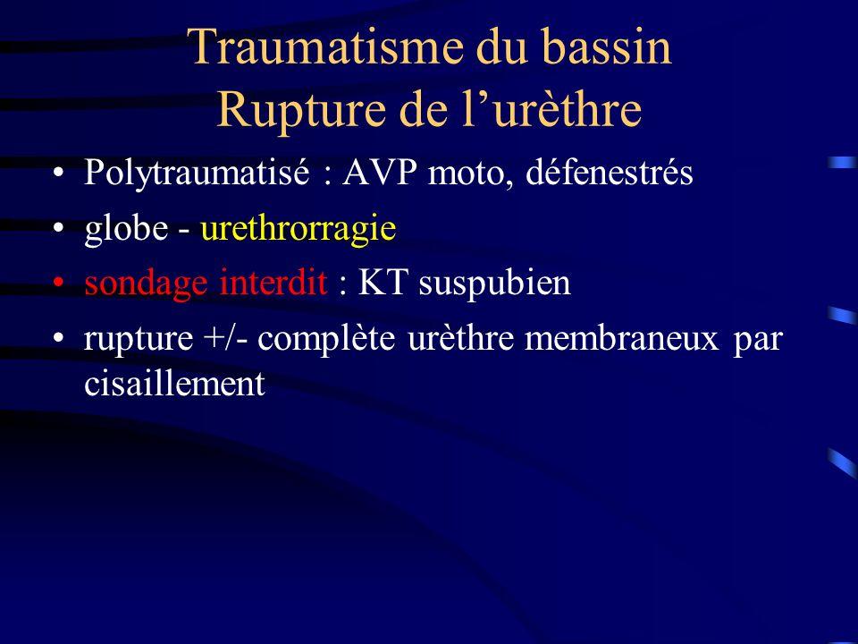 Traumatisme du bassin Rupture de lurèthre Polytraumatisé : AVP moto, défenestrés globe - urethrorragie sondage interdit : KT suspubien rupture +/- com