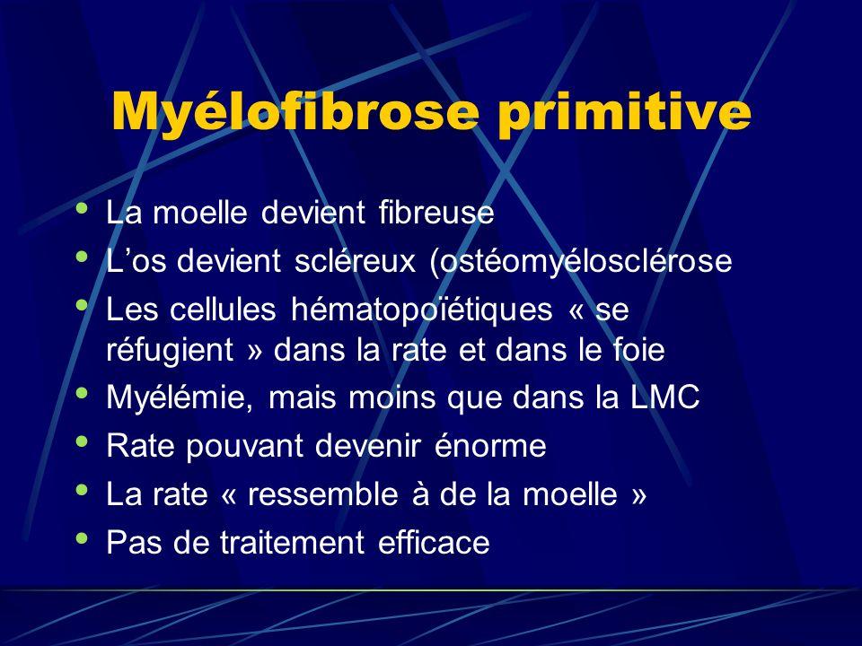 Myélofibrose primitive La moelle devient fibreuse Los devient scléreux (ostéomyélosclérose Les cellules hématopoïétiques « se réfugient » dans la rate et dans le foie Myélémie, mais moins que dans la LMC Rate pouvant devenir énorme La rate « ressemble à de la moelle » Pas de traitement efficace
